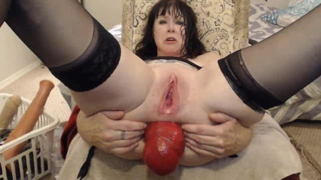 Dirtygarden girl and extremely nasty anal prolapse – this is some crazy shit!